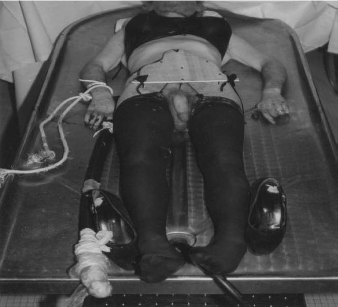 best of Erotic asphyiation Deaths