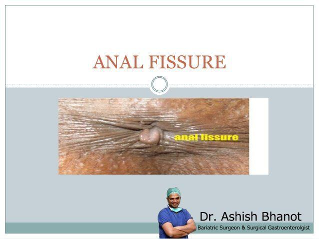 best of Cures and fissure Anal remendy