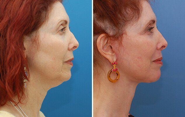 best of Scars surgery from lesion Facial plastic