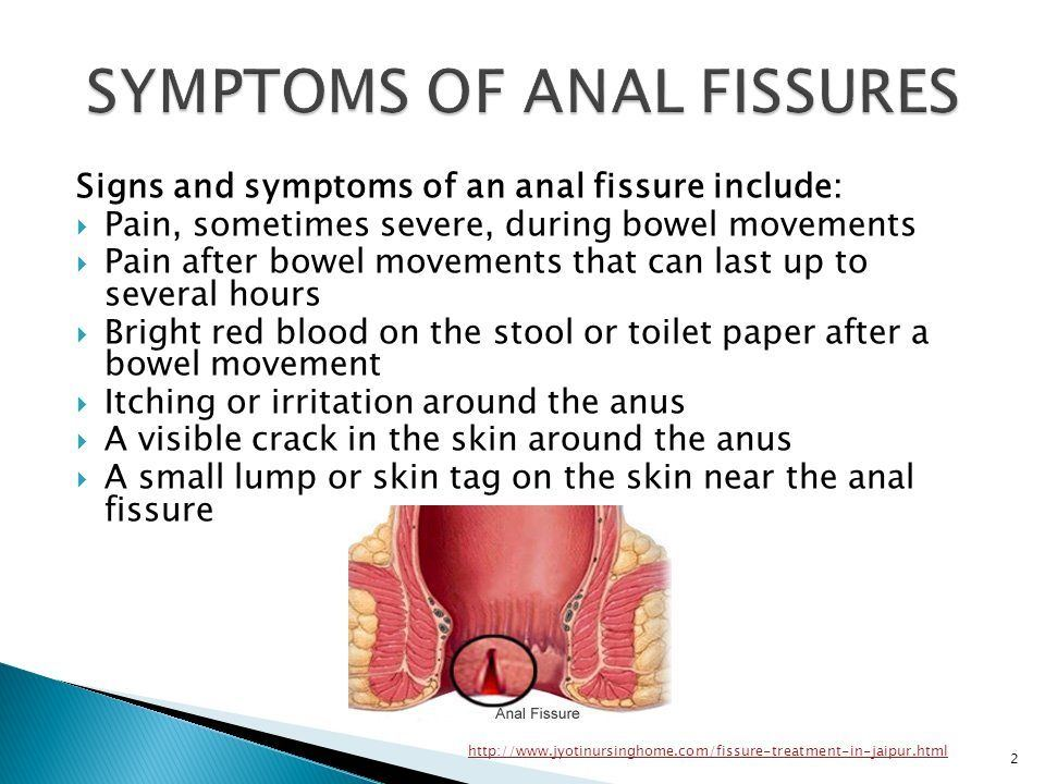Anal fissure remendy and cures