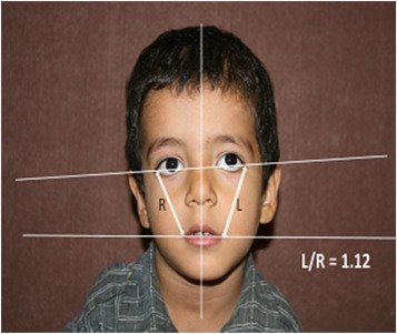 Asymmetry facial torticollis