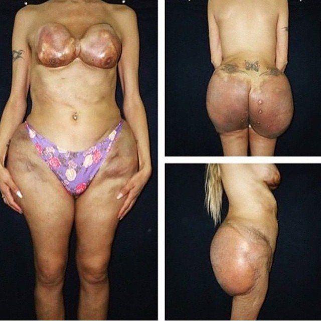 Boob bottom showing