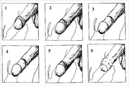Erect circumcised clitoris Circumcision and sex