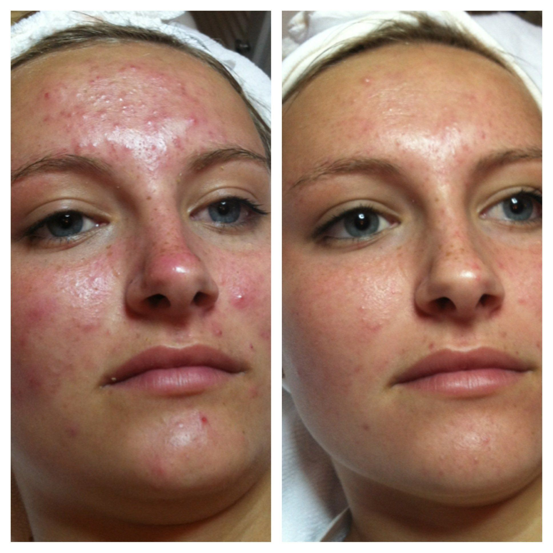 best of At facial nitrogin Liquid home