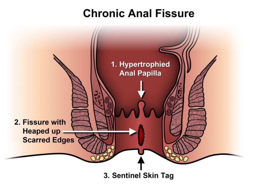 New medical procedures for anal fisures