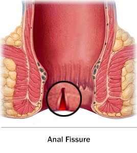best of For procedures New anal fisures medical
